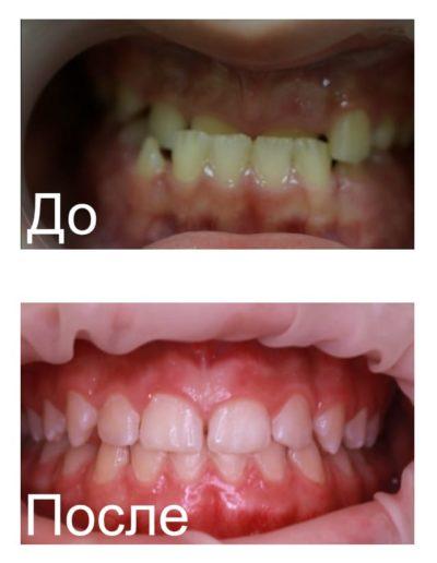 ortodonticheskie_plastinki_1
