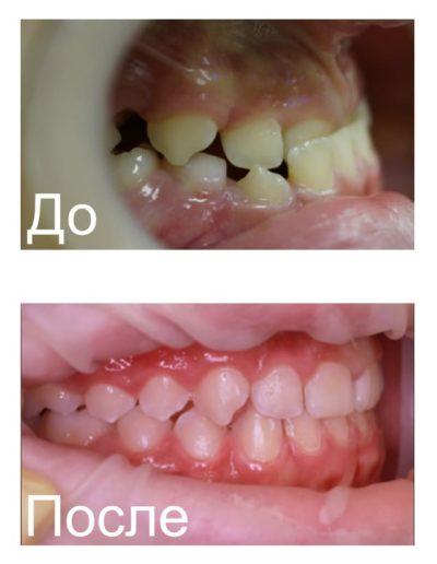 ortodonticheskie_plastinki_3