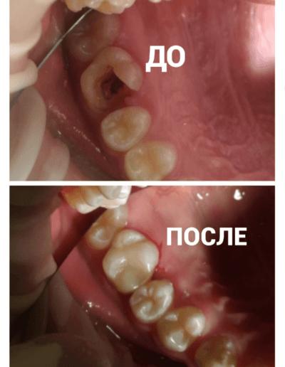 primeri_rabot_Melehina1